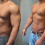 como reducir la ginecomastia portada