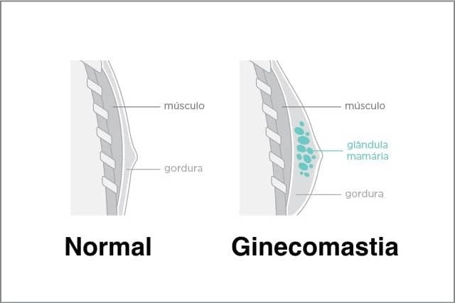 como reducir la ginecomastia