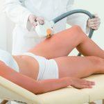 Tratamientos con láser médico