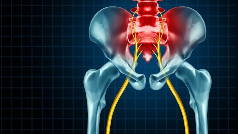donde se encuentra el dolor ciatico